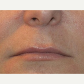 35-44 year old woman treated with Lip Lift, Dimpleplasty before 3065709