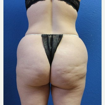 45-54 year old woman treated with Brazilian Butt Lift before 1556250