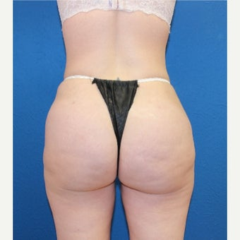 45-54 year old woman treated with Brazilian Butt Lift after 1556250