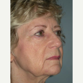 Facelift and Fat Injections