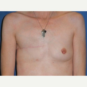 45-54 year old woman treated with Breast Reconstruction before 2417448