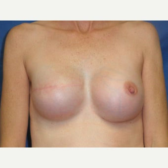 45-54 year old woman treated with Breast Reconstruction after 2417448