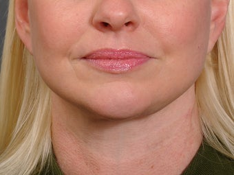 48 year old woman following neck lift as part of her facelift seen 2 years after. after 1270975