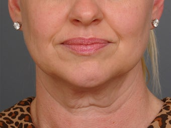 48 year old woman following neck lift as part of her facelift seen 2 years after. before 1270975