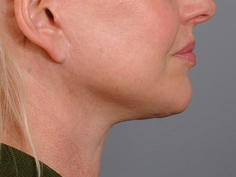 48 year old woman following neck lift as part of her facelift seen 2 years after. 1270975