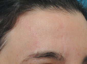 Post-traumatic Forehead Scar Revision after 1349898