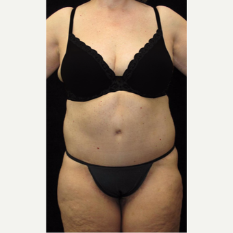 65 year old woman treated with Body Lift after 3025890