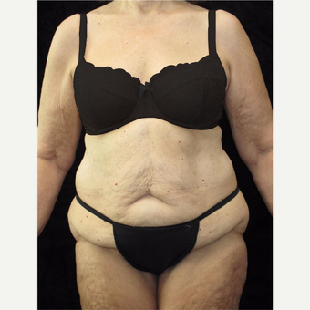 65 year old woman treated with Body Lift before 3025890