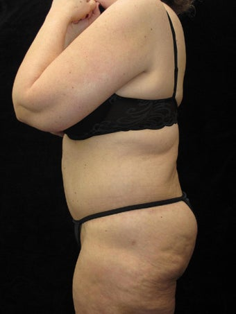 65 year old woman treated with Body Lift 3025890