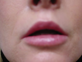 Fat transfer for lip augmentation 981637
