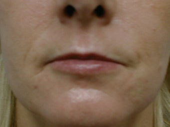 Fat transfer for lip augmentation before 981637