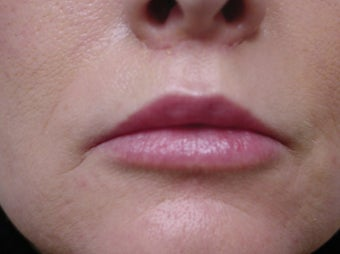 Fat transfer for lip augmentation after 981637