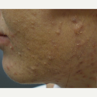 Treating acne can reduce acne scarring. before 3696970