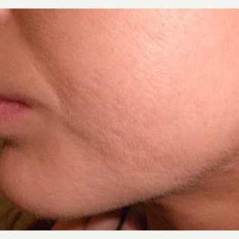 Treating acne can reduce acne scarring. after 3696970