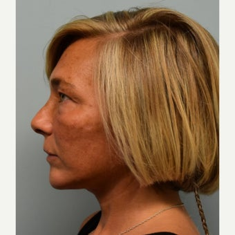 45-54 year old woman treated with Lower Face Lift after 2493176