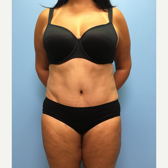 50 year-old woman treated with Tummy Tuck and Lipo 360 after 3494995