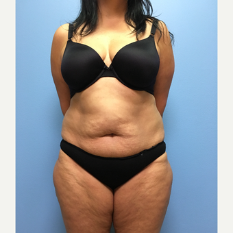 50 year-old woman treated with Tummy Tuck and Lipo 360 before 3494995