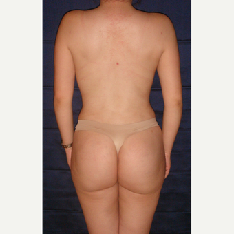 25-34 year old woman treated with Liposculpture after 3815460
