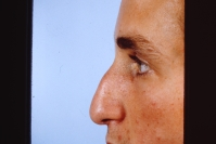 Rhinoplasty before 3446453