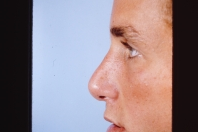 Rhinoplasty after 3446453