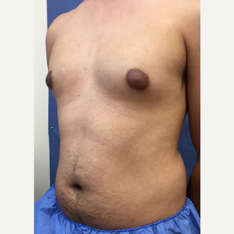 25-34 year old man treated with Smart Lipo before 3372644
