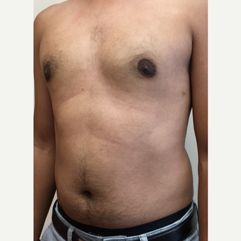 25-34 year old man treated with Smart Lipo after 3372644