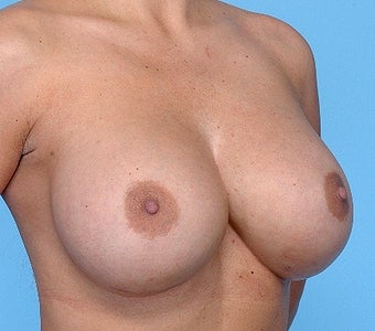 Breast implant removal and replacement after 67454