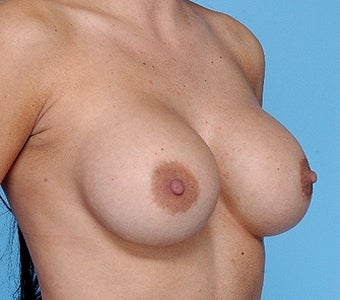 Breast implant removal and replacement before 67454