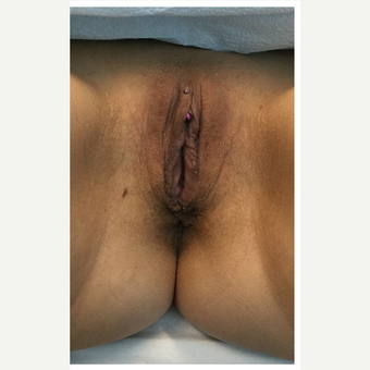 35-44 year old woman treated with Labiaplasty after 3187486