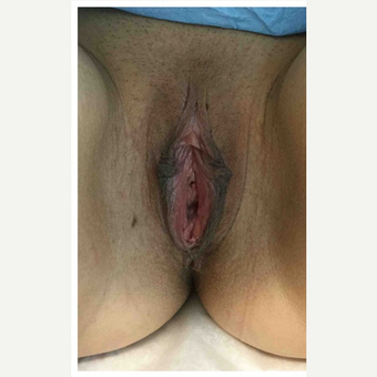 35-44 year old woman treated with Labiaplasty before 3187486
