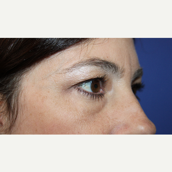35-44 year old woman treated with Eyelid Surgery before 3691019