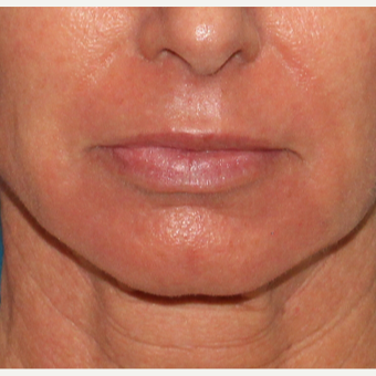 35-44 year old woman treated with Laser Resurfacing after 2706990
