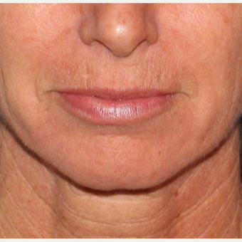 35-44 year old woman treated with Laser Resurfacing before 2706990