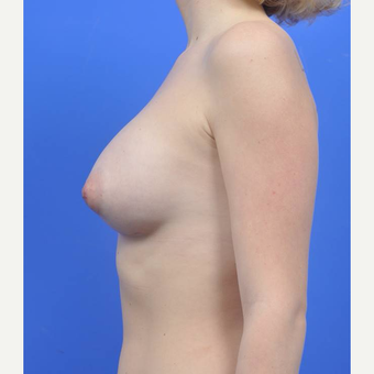 18-24 year old woman treated with Breast Augmentation after 3170863