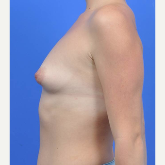 18-24 year old woman treated with Breast Augmentation before 3170863