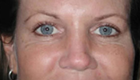 Botox for Crows Feet and Laugh Lines after 97311