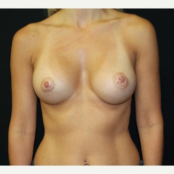 35-44 year old woman treated with Breast Augmentation after 2233493