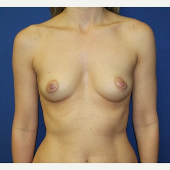 35-44 year old woman treated with Breast Augmentation before 2233493