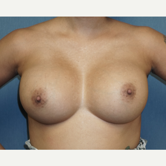35-44 year old woman treated with Breast Augmentation after 3726841