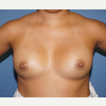 35-44 year old woman treated with Breast Augmentation before 3726841