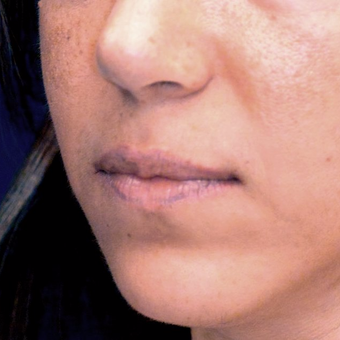 35-44 year old woman treated with Lip Lift before 3006140