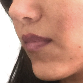 35-44 year old woman treated with Lip Lift after 3006140