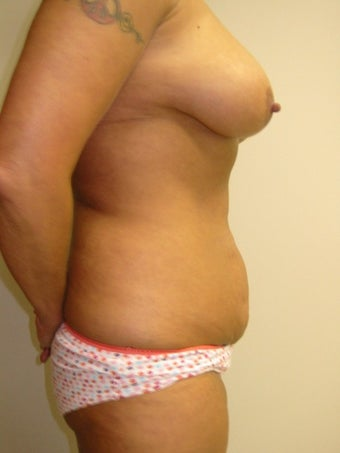 45-54 year old woman treated for Mommy Makeover 1534713