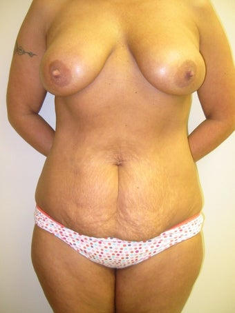 45-54 year old woman treated for Mommy Makeover before 1534713
