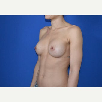 25-34 year old woman treated with Breast Augmentation after 2550784