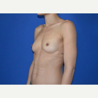 25-34 year old woman treated with Breast Augmentation before 2550784