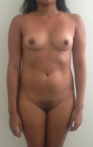 18-24 year old woman treated for Liposuction before 1529315