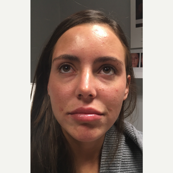 25-34 year old woman treated with Restylane before 3804100