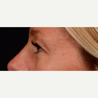45-54 year old woman treated with Eyelid Surgery before 3776249