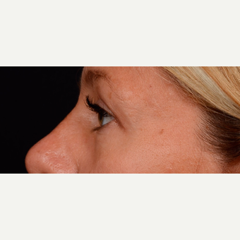 45-54 year old woman treated with Eyelid Surgery after 3776249